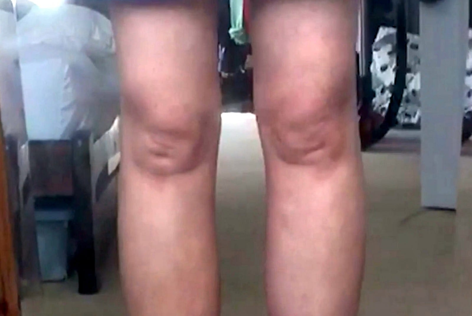 'I've Got Them Out At Parties Before' - Woman Has Knees That Resemble Both Mitchell Brothers!