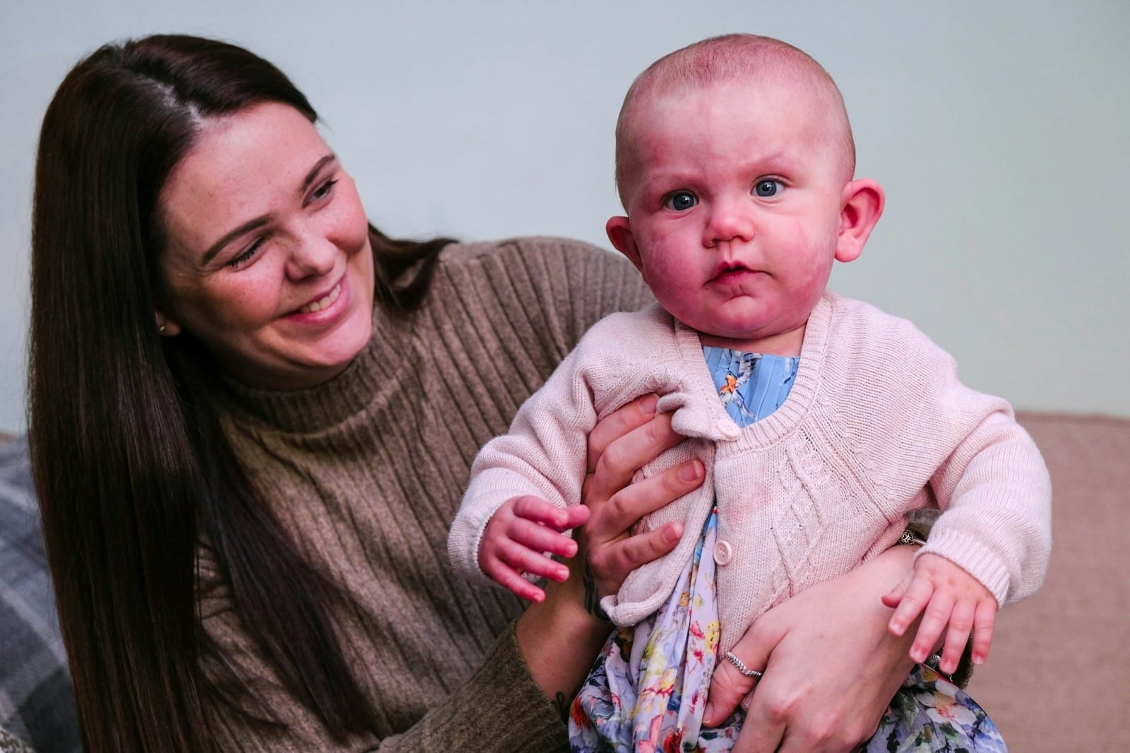 "'I Was Scared Of What People Would Think Of Me As A Mum' – Mum Of Girl With ""Purple"" Birthmarks Bravely Admitted She Hid Her From Strangers After She Was Born"