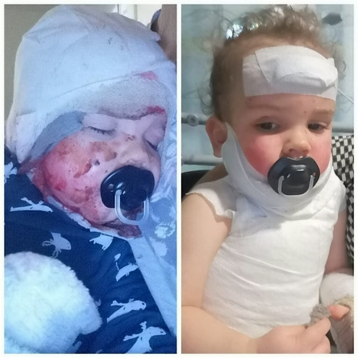 My Little Boy Almost Died And Was Left With Third Degree Burns All Over His Body After Pulling A Vegetable Steamer Over His Head