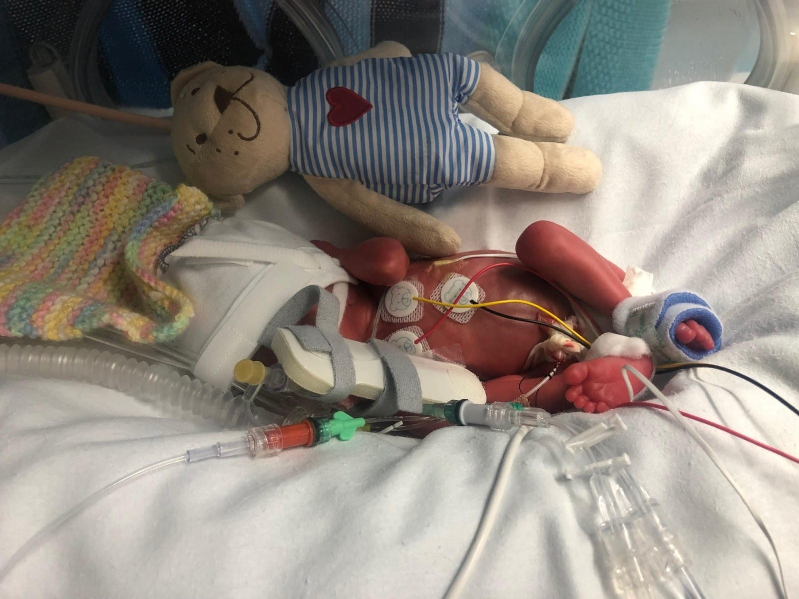 'You Could Hold Him In The Palm Of Your Hand' – Tiny Baby Who Arrived Almost Three Months Early – Was Dwarfed By His TEDDY BEAR