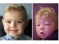 Five-Year-Old Facing Fight Against Rare Condition That Causes His Face And Body To Swell Like A Balloon
