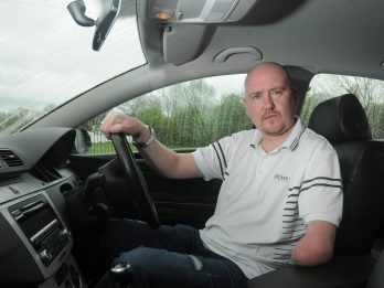 Man Launches Appeal After Callous Thieves Steal His False Arm
