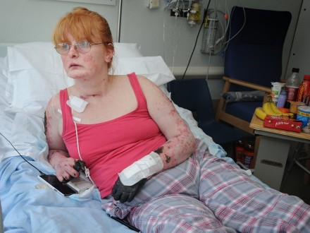 Mum struck down with severe blood poisoning told she needs triple amputation