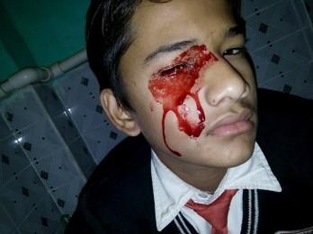'Stigmata' Teen Cries BLOOD Up To Ten Times A Day