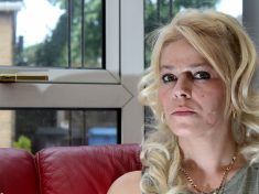 Mum Labels Herself A 'Freak' After Neighbour Bit Off Chunk Of Her Cheek In Row Over Milk