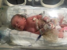 Mum Gives Birth To Two Babies Born With External Intestines Who Were Saved By Clingfilm