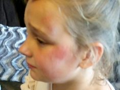 """Ten-Year-Old Girl Left With Broken A Arm After Being Struck By """"Psycho Clown With A Knife"""""""