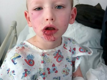 Four-Year-Old Scarred For Life After Having Chunk Of Lip Ripped Off By Devil Dog