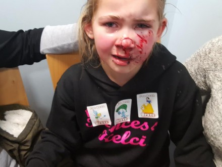 Beautiful little girl scarred for life after playdate with neighbour's aggressive dog