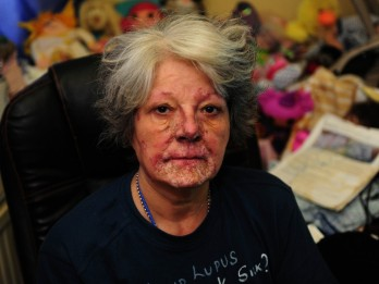 Woman Trapped In House With Flesh Eating Disease Has Benefits Cut After Being Deemed Fit To Work