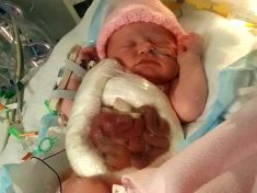 Mum Shares Incredible Picture Of Baby Born With Her Intestines On The OUTSIDE