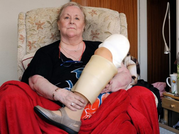 Woman Who Had Leg Amputated Trapped In Flat For Two Months - Because The Lift Is Broken