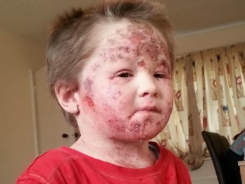 Shocking Pictures Show Toddler Suffering From Withdrawal Symptoms -After Becoming Addicted To Eczema Cream