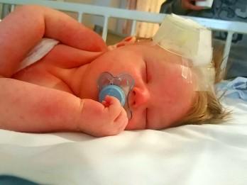 Horrifying Photos Show How Tot's Meningitis Rash Grew To Cover His Whole Body In 24 Hours