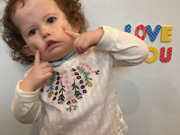 Surgery Offers Hope To Little Girl Who Has Never Been Able To Smile Due To Rare Syndrome