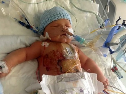 Tiny tot with half a HEART allowed to go home after surviving open-heart surgery - at four days old