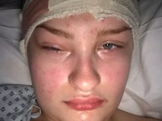 Young Woman Diagnosed With Tumour In Her Sinus – After Her Boyfriend Spotted She Had 'Drunk Eyes'
