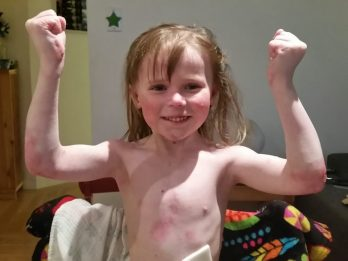 Little Girl Has Condition That Makes Her Skin As Delicate As A Butterfly's Wings
