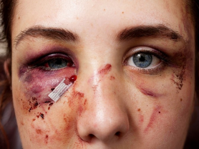Autistic Teen Left With Shocking Injuries After Being Brutally Beaten By Female Yob