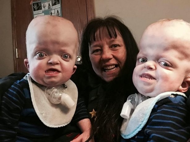 Miracle Mum Adopts Twins With A Rare Genetic Deformity After They Were Taken Away From Their Parents