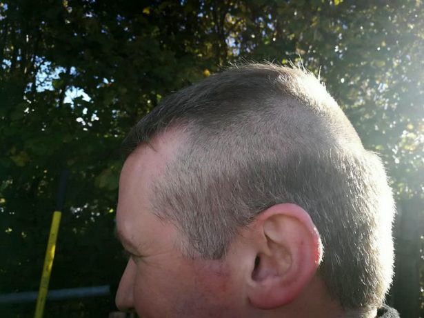 Firefighter Arrived At 999 Call With Half His Head Shaved - After Being Called Out During A HAIRCUT