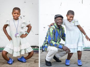 Incredible surgical transformation of 11-year-old girl whose bowed legs were so twisted they faced BACKWARDS
