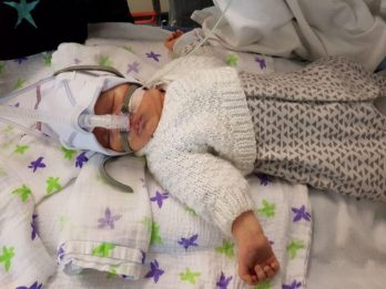 Mother Has Told How Her Brave Baby Is Repeatedly Brought Back From The Brink Of Death - As He Battles Mystery Rare Condition