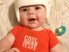 Adorable Moment Family Wear Helmets To Sooth Baby Son Who Has To Wear One 23 Hours A Day