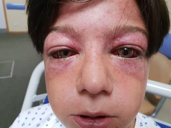 Bizarre Playground Stunt Causes Serious Injuries To Boy