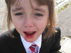 Little Girl Left With Bloodied Face On Her First Day Of School Following Ticket Row With Bus Driver