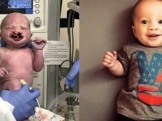Baby Born With Severe Cleft Palate Can Smile For The First Time After Undergoing Life-Changing Surgery