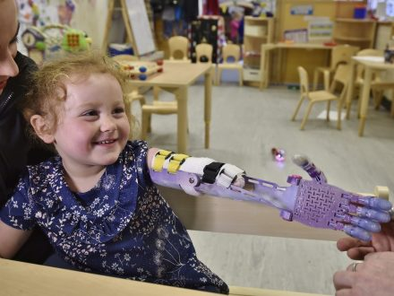 Four-Year-Old Girl Given New 'Bionic' Arm After She Was Born With Part Of Her Arm Missing