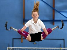 Teen Who Became Trampoline Champ Despite Losing Both Arms And Legs To Meningitis Wins National Bravery Award