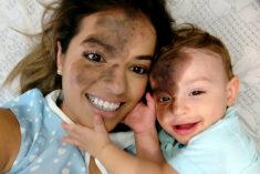 Mum Gets Perfect Replica Of Son's Facial Birthmark Painted On Her