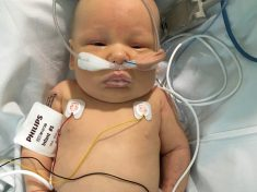 Parents Of Poorly Five-Week-Old Baby Believe They Saved His Life By Following Their Instincts