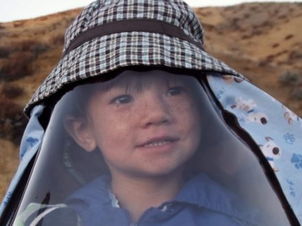 Meet The One-In-A-Million 'Moon Boy' Who Wears Plastic Visor Wherever He Goes Because He's Allergic To The SUN