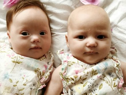 Meet The 'One In A Million' Twins - One With Down's Syndrome And The Other Without