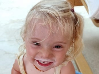 Beautiful Two-Year-Old Girl Diagnosed With Such An Ultra-Rare Condition It Doesn't Have A Name