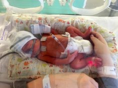 Mum Expecting Triplets Forced To Sacrifice Conjoined Twins To Save Other Baby
