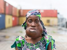 """Mum Reveals New Face After Having Enormous Tumour Removed And Told Family """"I Feel Beautiful'"""