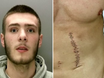 Teen thug Jailed For Leaving Bodybuilder Scarred For Life After Slashing Him With Knife As He Tried To Save Woman