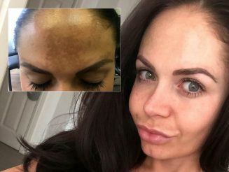 Woman Who Blew More Than £4k Trying To Repair Sun-Damaged Skin Cured The Problem - With a £49.99 Moisturiser
