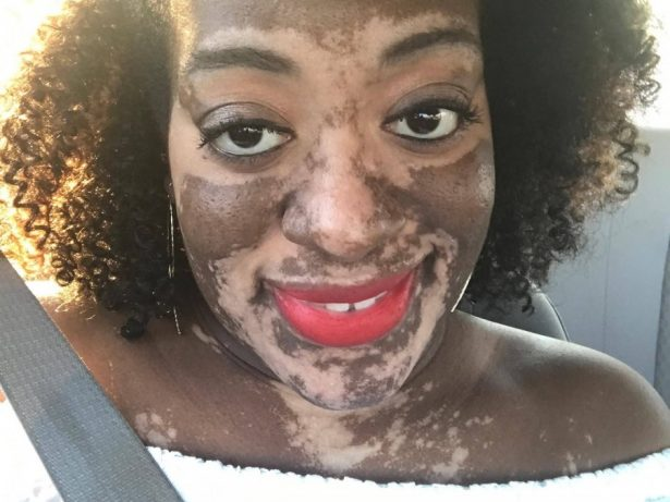 Bride Developed Skin Condition Just Weeks Before Her Wedding That Made Her Skin Change Colour