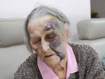 Thug Jailed After Cowardly And Vicious Attack On 88-Year-Old Woman