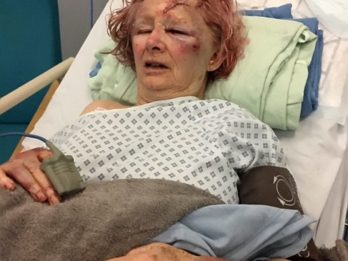 Horrific Pictures Show Woman's Injuries After She Was Beaten With A Torch By Her Partner