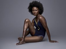 "Woman Who Hid ""Ugly"" Leg For 14 Years After Being Mocked By Bullies Hit Back By Becoming A MODEL"
